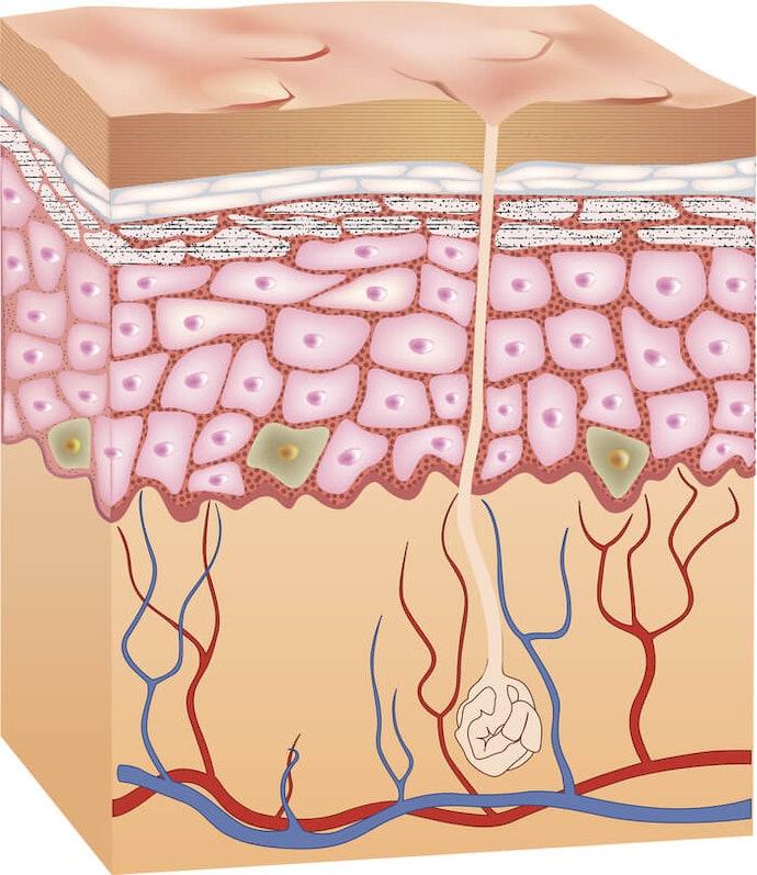 真皮層老化導致肌膚缺水、失去彈性